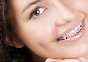 ortodonti-istanbul