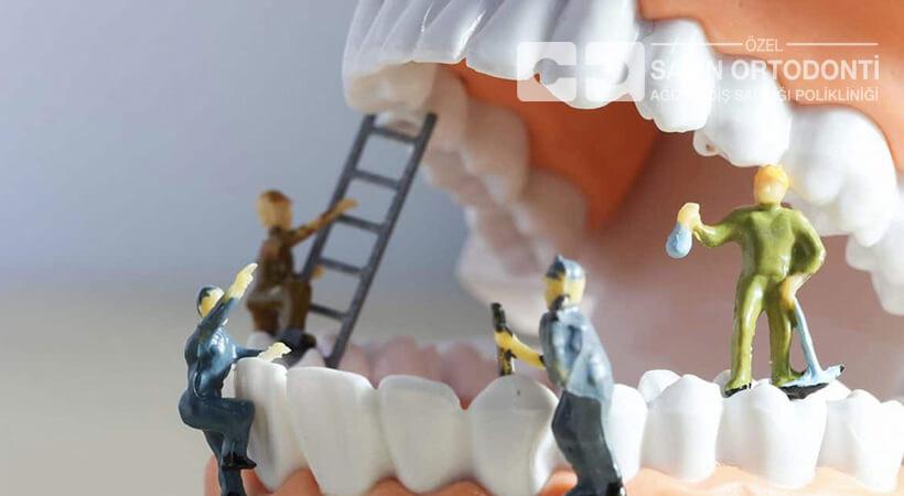 20 lik diş çekimi bilgileri