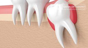 20 yaş diş çekimi zormudur?