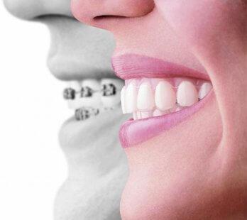 antalyada en iyi ortodonti doktoru