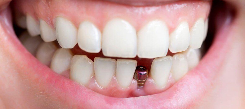 Antalya İmplant Diş Modelleri