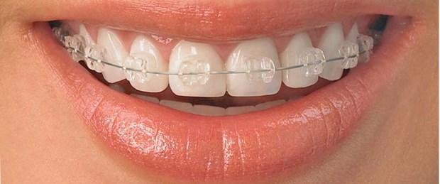 Antalya Ortodontist Önerileri