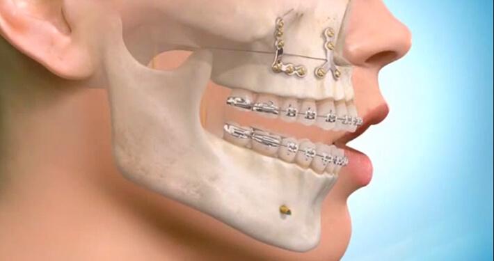 Antalya Ortognatik Cerrahi Ameliyatı