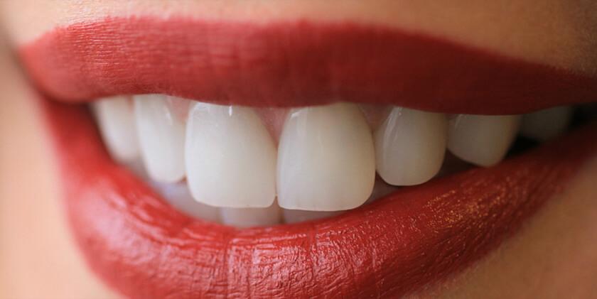 Antalya Porselen Diş Ücretleri