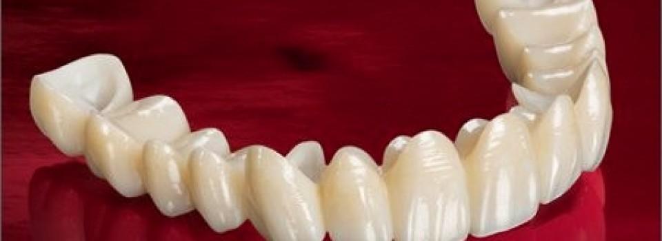 Antalya Porselen Diş Modelleri