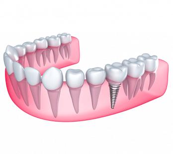 Antalya implant diş teknolojisi