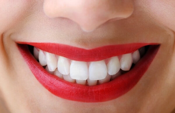 Antalya porselen diş