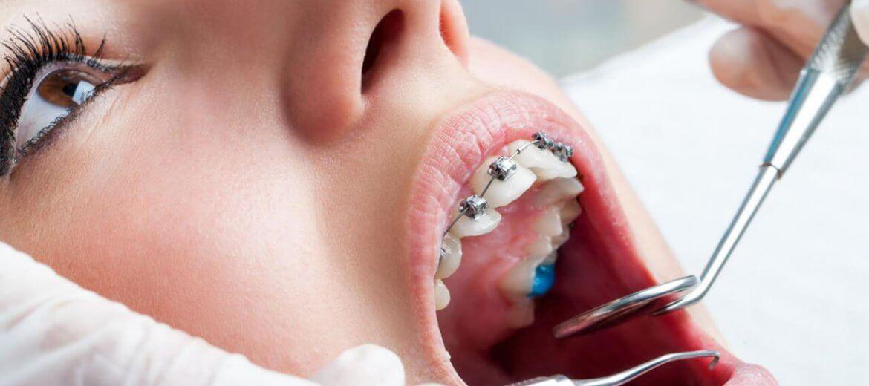 antalya ortodonti fiyatları