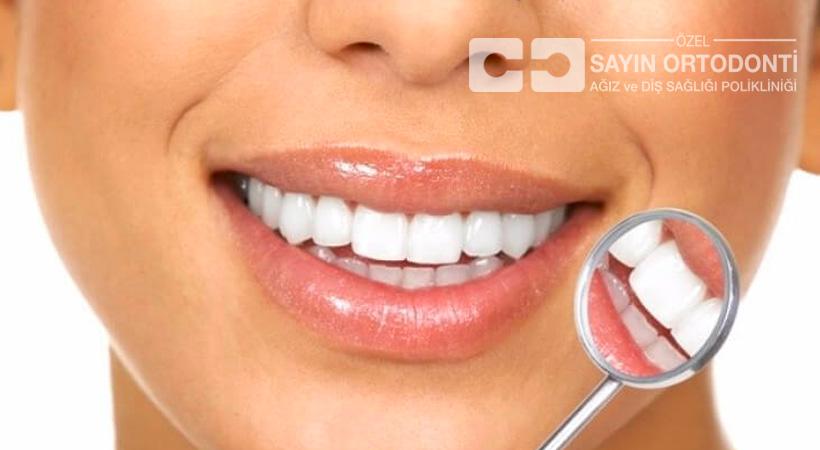 Yetişkinlerde Tamamlayıcı Ortodontik Tedavi