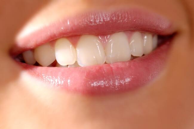Zirkonyum Ön Diş Estetiği Uygulamaları