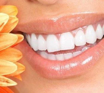 antalya diş estetiği ameliyatı