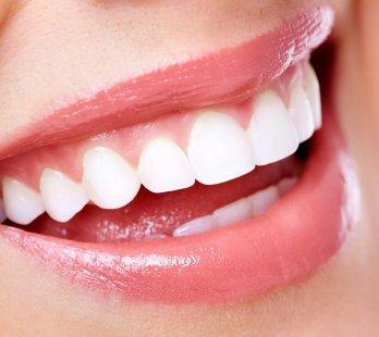 antalya diş estetiği fiyatları