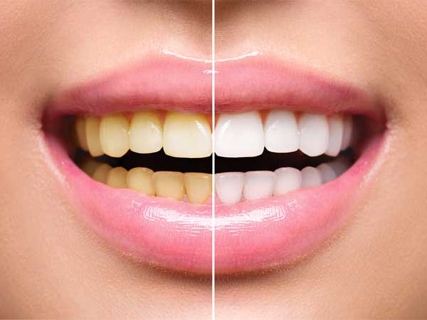 antalya diş beyazlatma tedavi