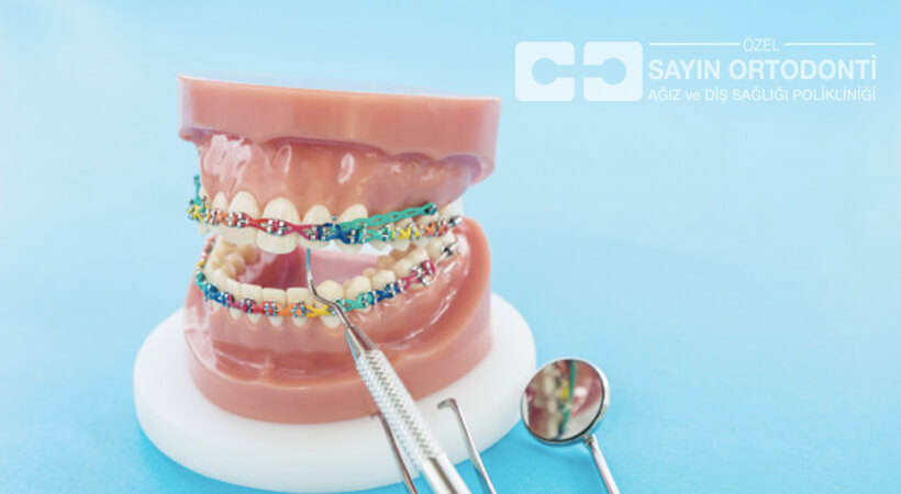antalya diş teli tedavisi yöntemleri