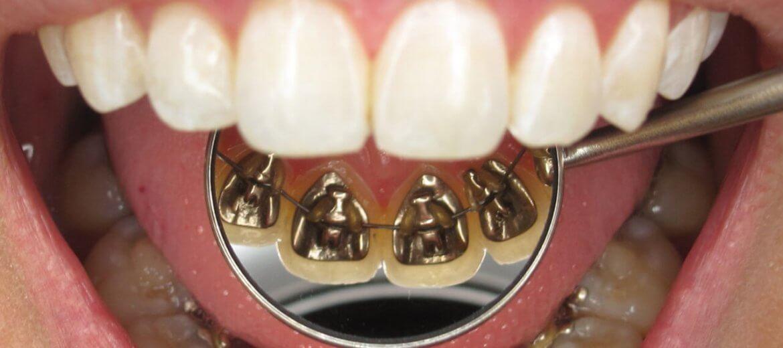 antalya-ortodontist