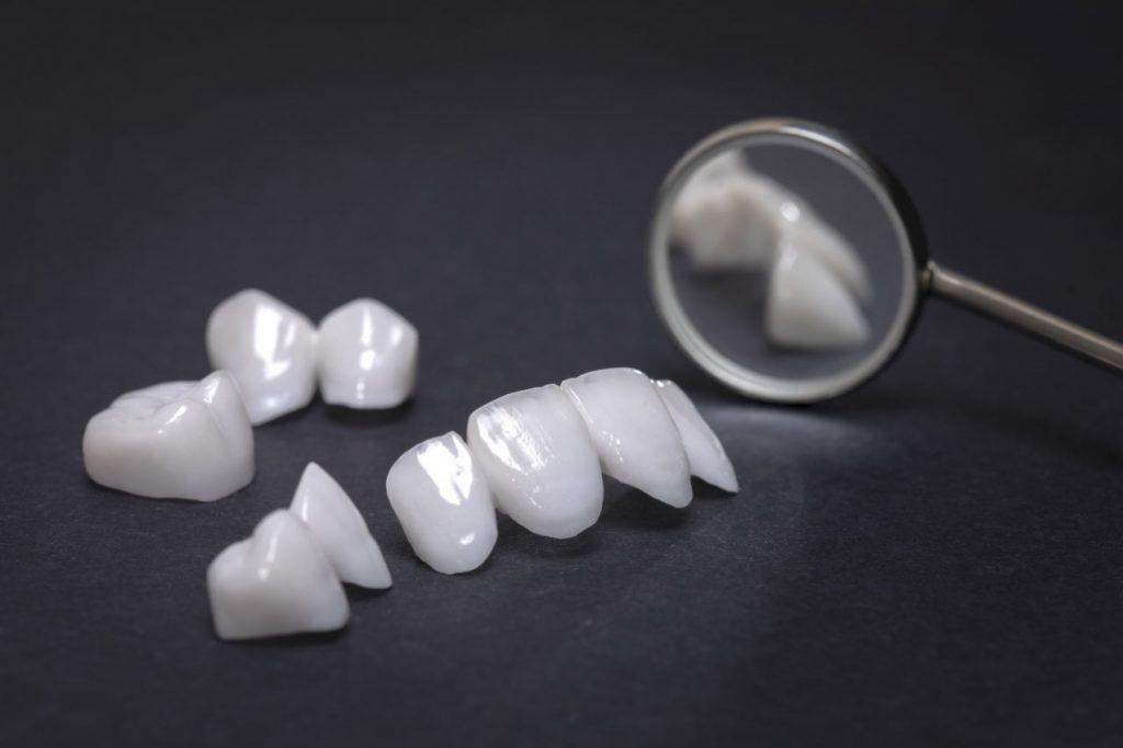 antalya zirkon diş tedavisi