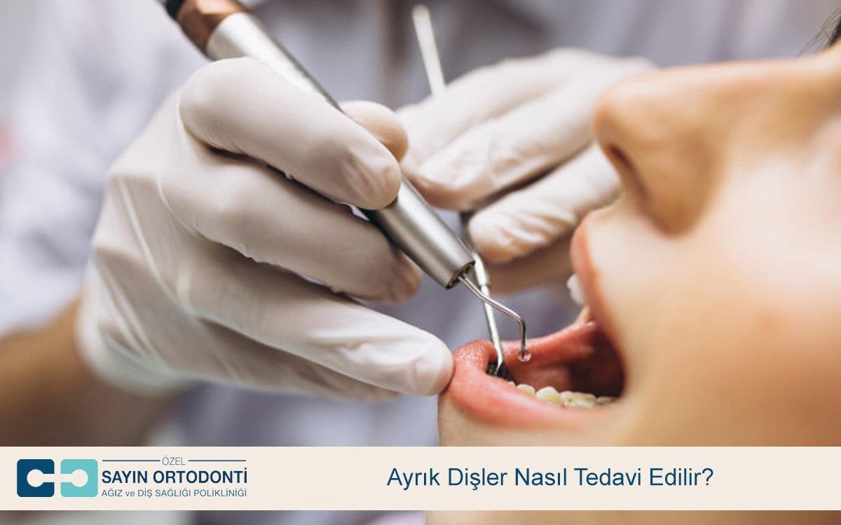 Ayrık Dişler Nasıl Tedavi Edilir