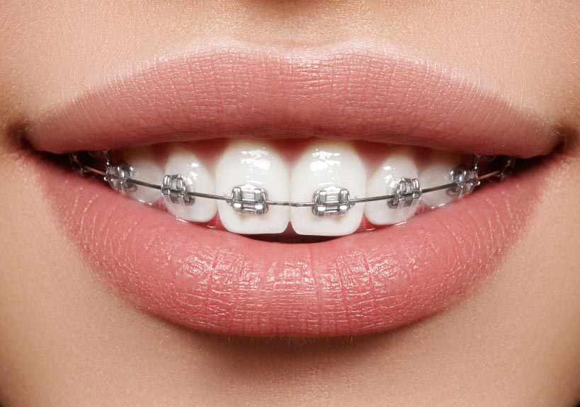 bracket ortodonti tedavi