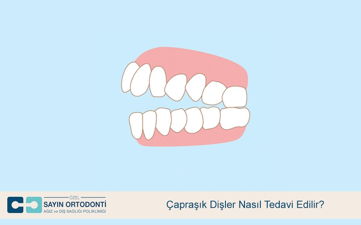 Çapraşık Dişler Nasıl Tedavi Edilir