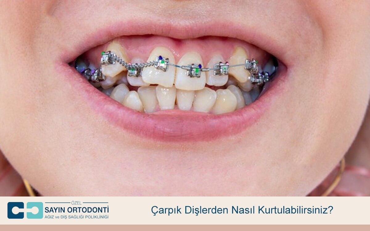 Çarpık Dişlerden Nasıl Kurtulabilirsiniz?