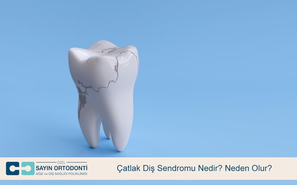 Çatlak Diş Sendromu Nedir? Neden Olur