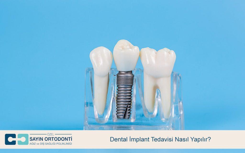 Dental İmplant Tedavisi Nasıl Yapılır