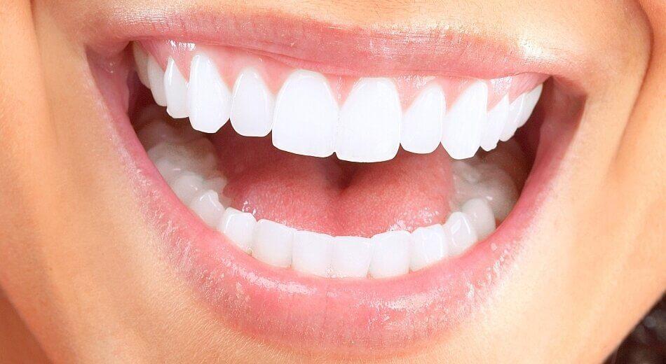 Diş Kaplamada Zirkon Diş Ne Demek?
