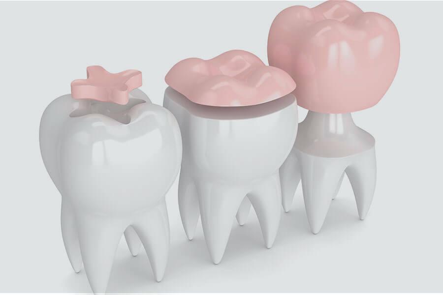 antalya diş dolgu tedavisi