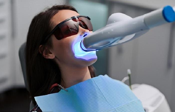 diş beyazlatma antalya hizmet