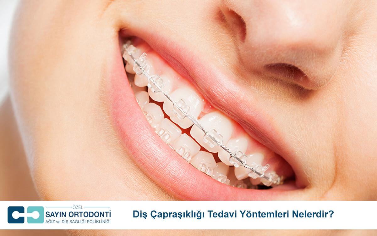 Diş Çapraşıklığı Tedavi Yöntemleri