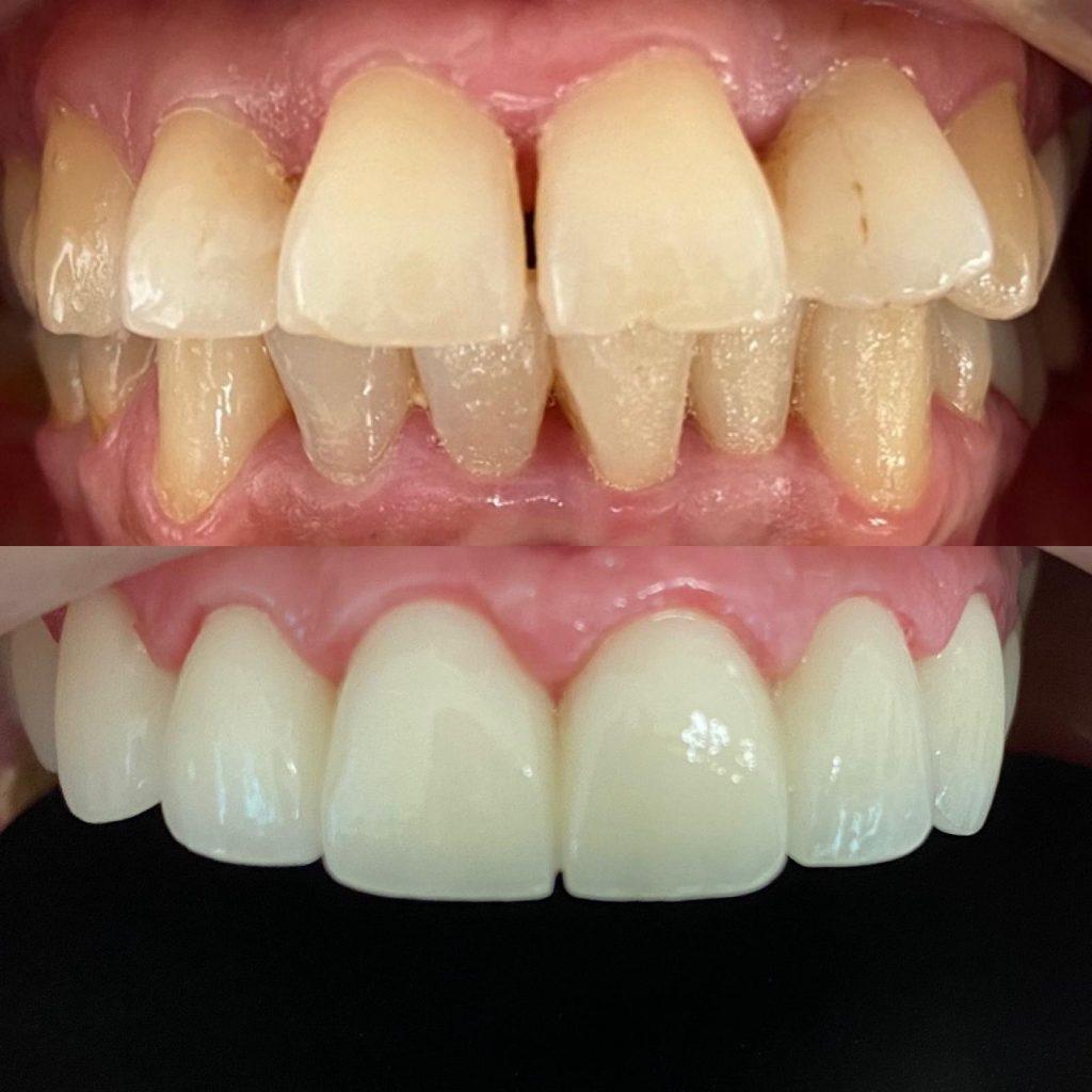 diş çapraşıklık tedavisi antalya