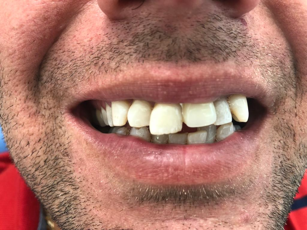 diş çapraşıklık hizmeti antalya