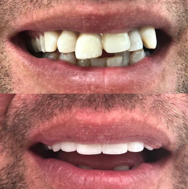 diş çapraşıklığı tedavisi antalya