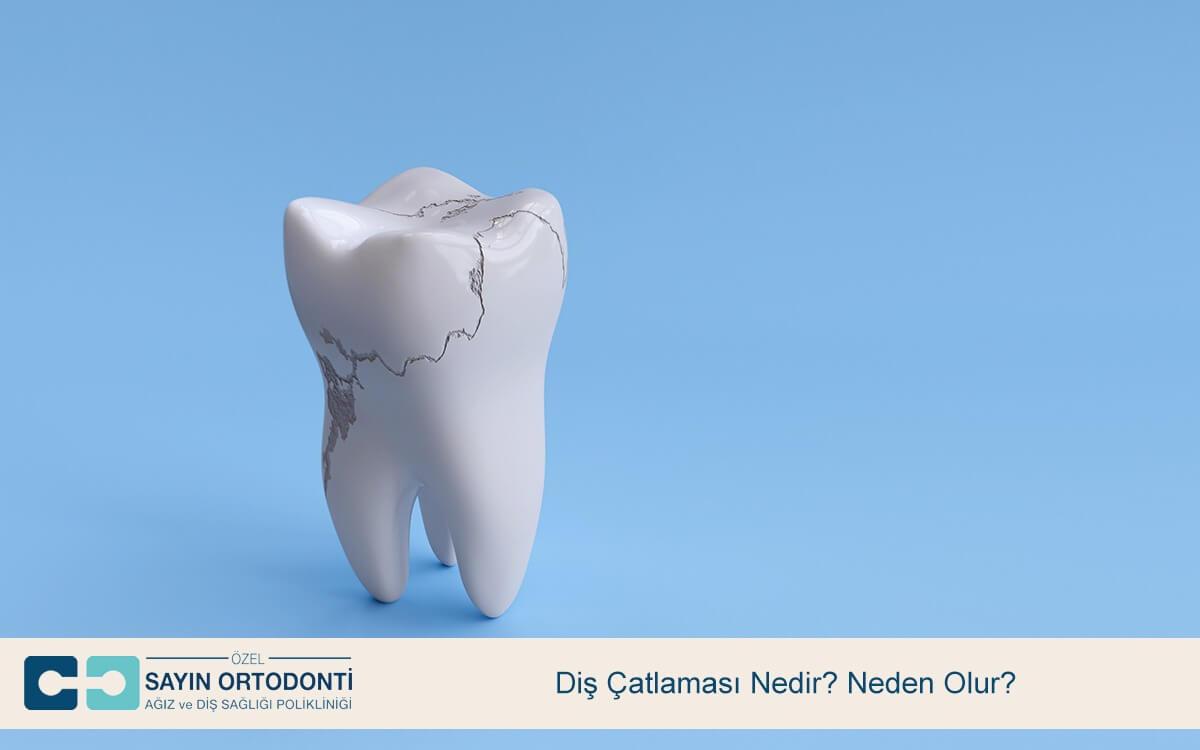 Diş Çatlaması Nedir? Neden Olur?