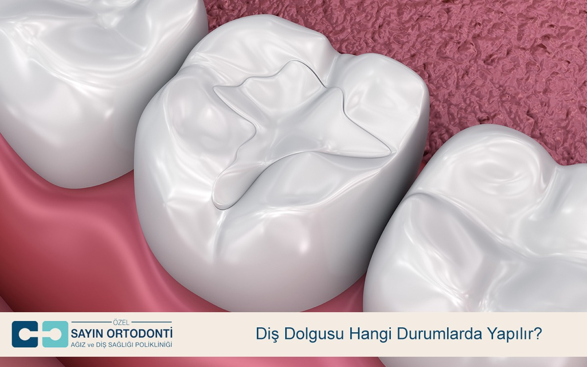 Diş Dolgusu Hangi Durumlarda Yapılır