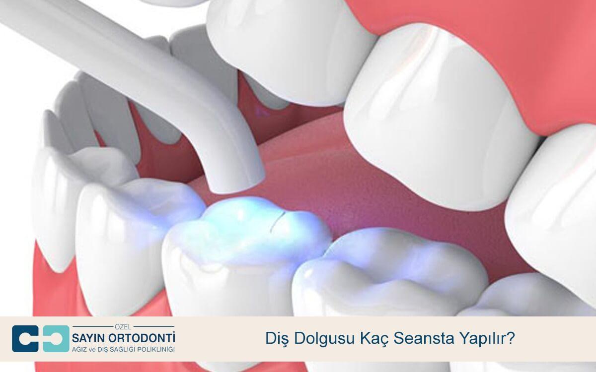 Diş Dolgusu Kaç Seansta Yapılır?