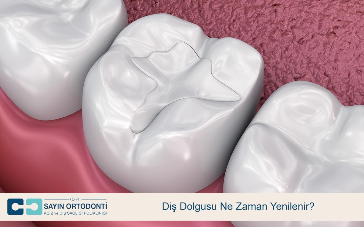 Diş Dolgusu Ne Zaman Yenilenir?