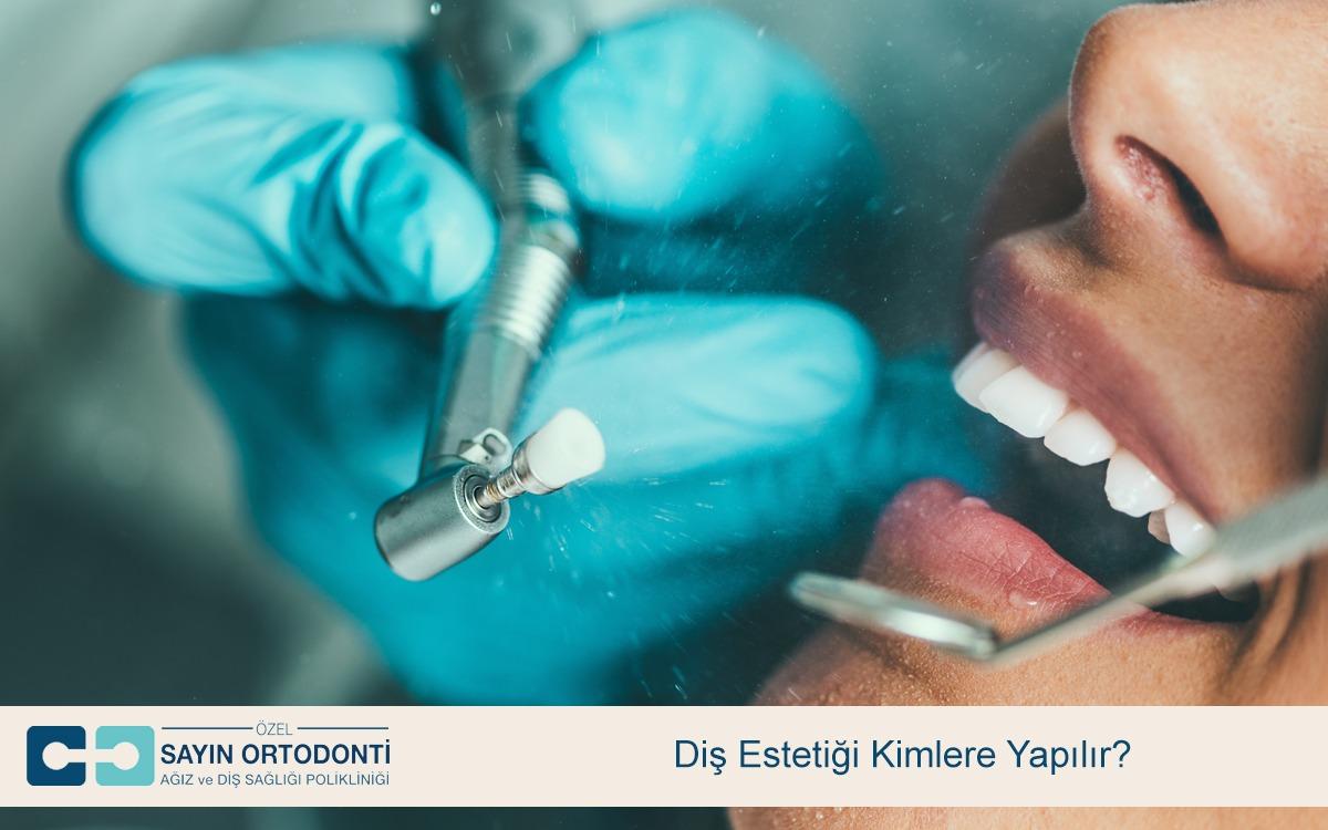 Diş Estetiği Kimlere Yapılır