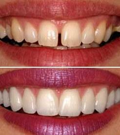 diş estetiği nasıl yapılmalıdır