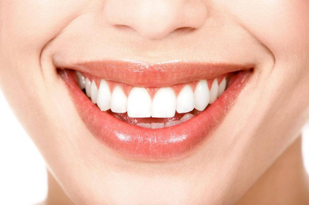 diş estetik antalya