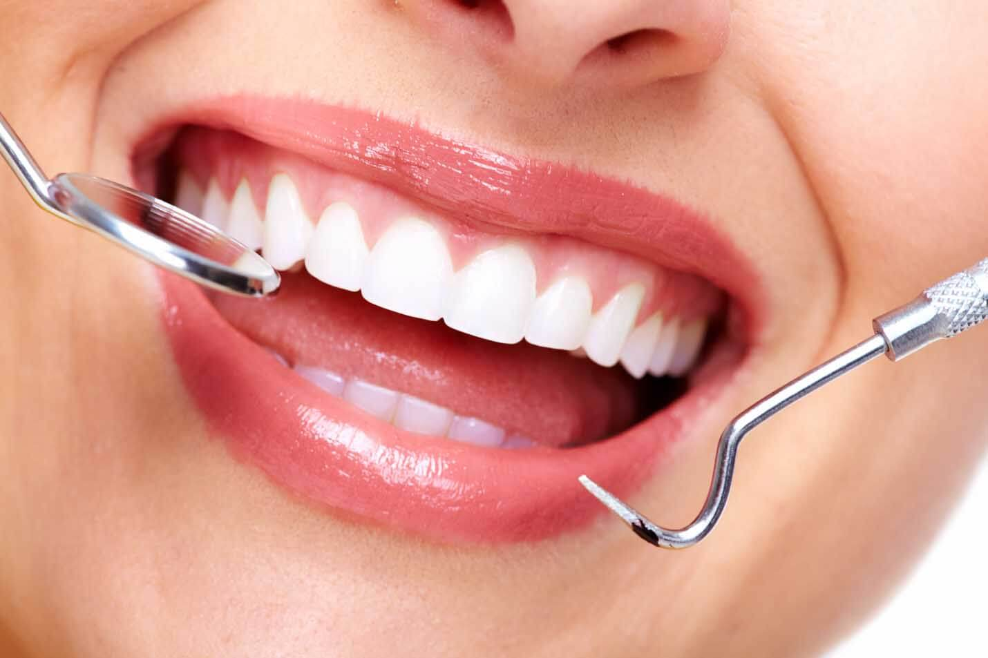 diş estetik antalya hizmet