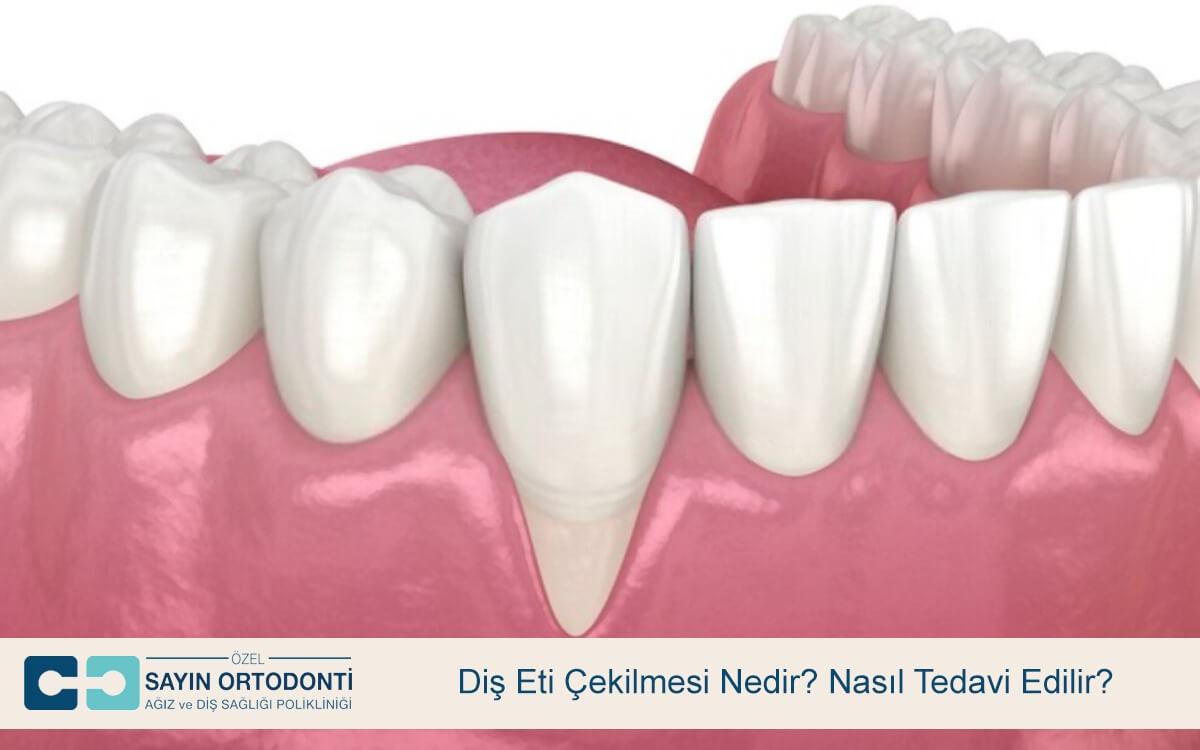 Diş Eti Çekilmesi Nedir? Nasıl Tedavi Edilir?