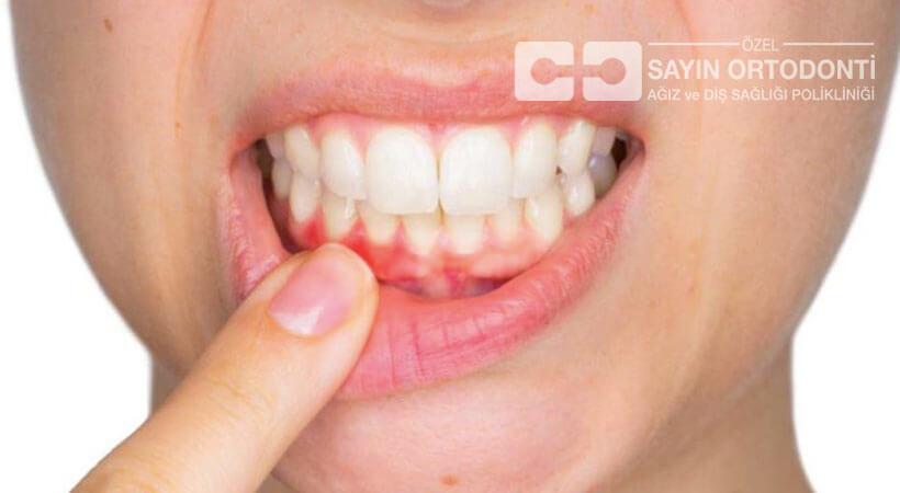 diş eti hastalıkları ve tedavileri