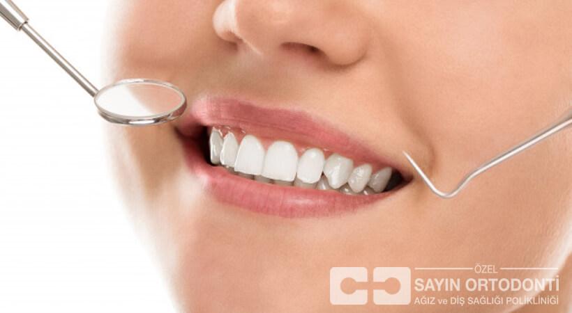 Antalya Diş Eti Tedavisi Fiyatları