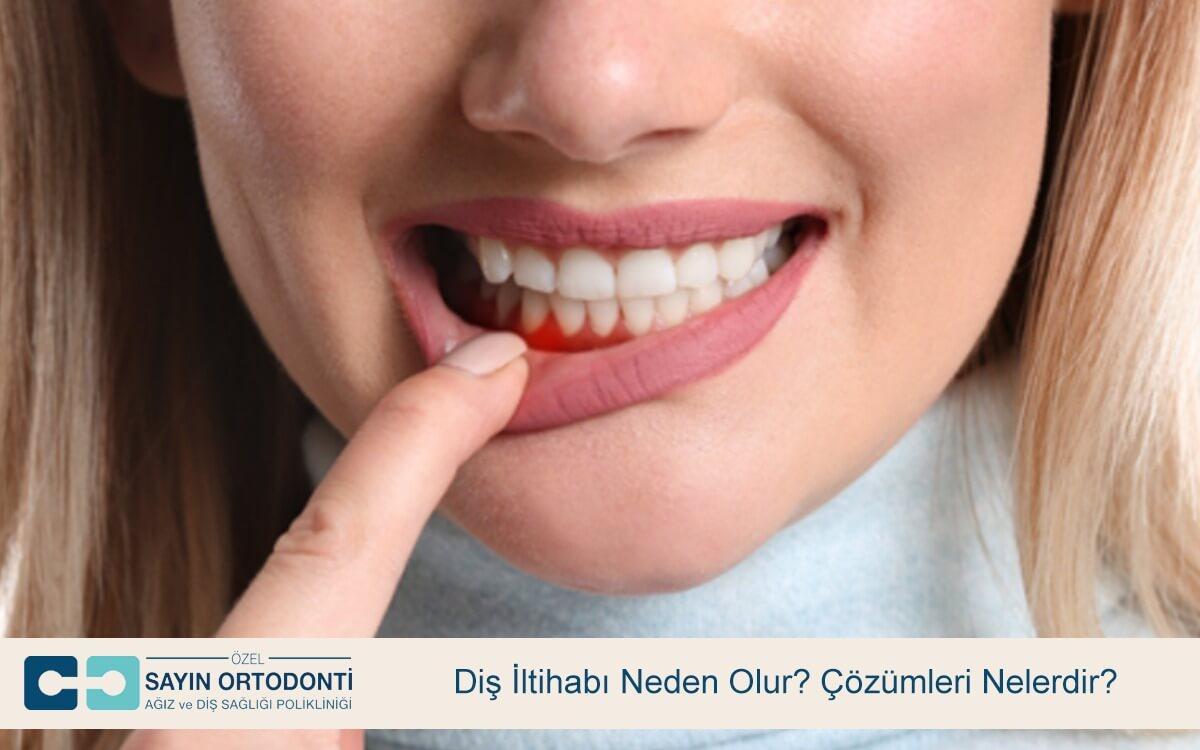 Diş İltihabı Neden Olur? Çözümleri Nelerdir?