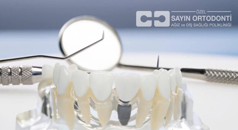 diş implantın avantajı
