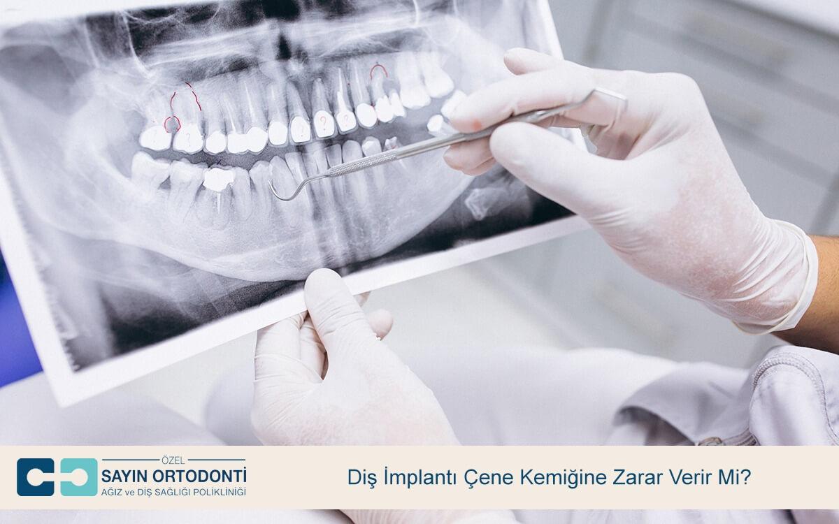Diş İmplantı Çene Kemiğine Zarar Verir Mi?