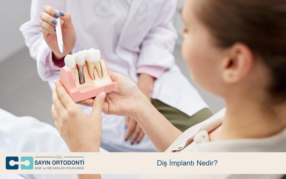 Diş İmplantı Nedir