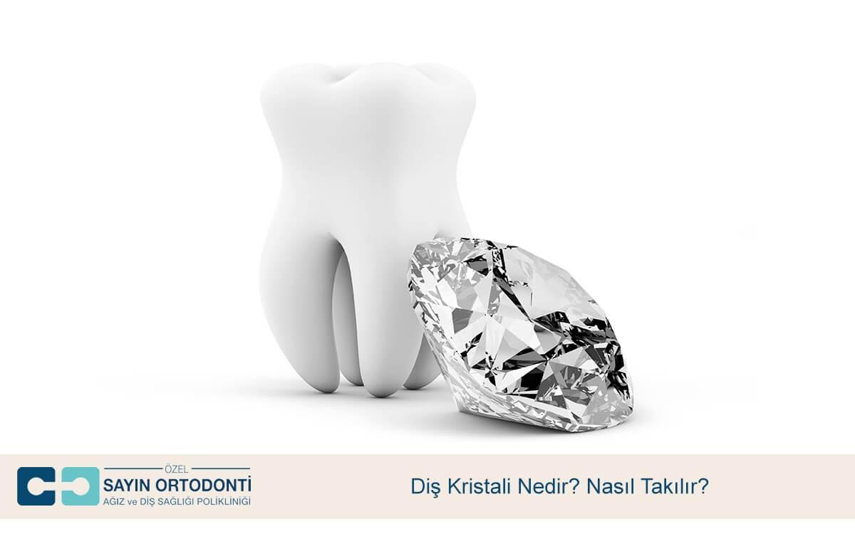 Diş Kristali Nedir? Nasıl Takılır?