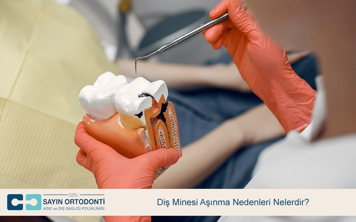 Diş Minesi Aşınma Nedenleri Nelerdir?